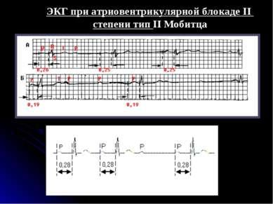 ЭКГ при атриовентрикулярной блокаде II степени тип II Мобитца
