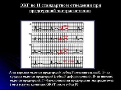 ЭКГ во II стандартном отведении при предсердной экстрасистолии А-из верхних о...