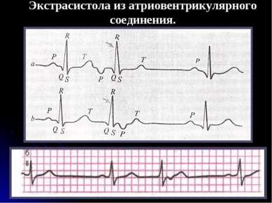 Экстрасистола из атриовентрикулярного соединения.