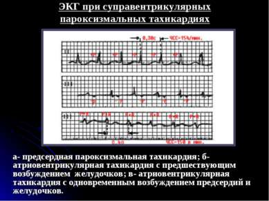 ЭКГ при суправентрикулярных пароксизмальных тахикардиях а- предсердная парокс...