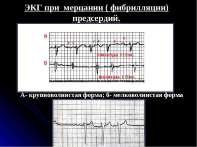 ЭКГ при мерцании ( фибрилляции) предсердий. А- крупноволнистая форма; б- мелк...