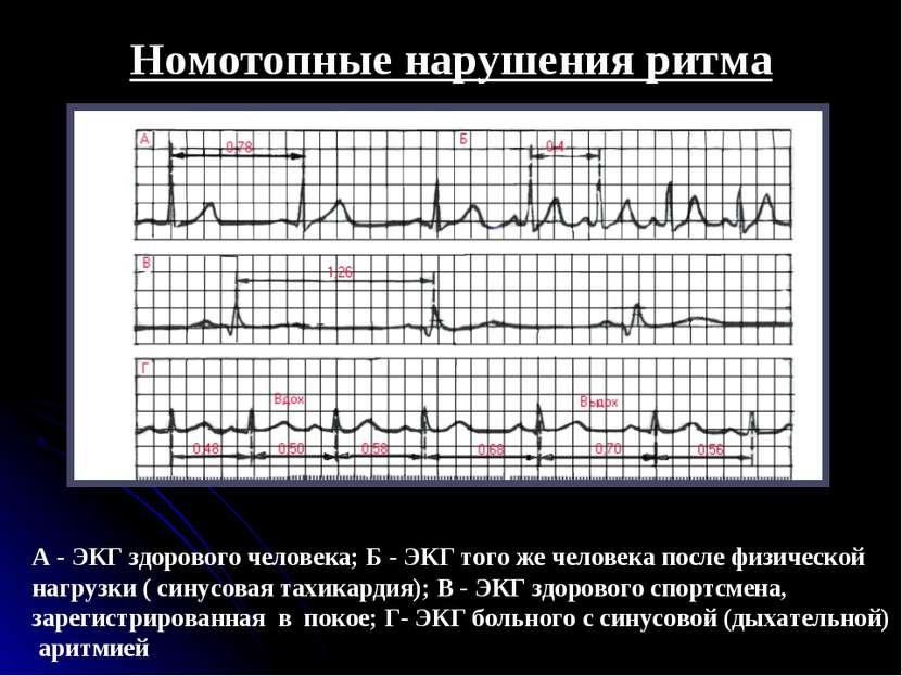 Номотопные нарушения ритма А - ЭКГ здорового человека; Б - ЭКГ того же челове...