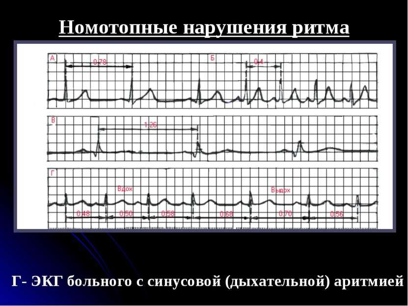 Номотопные нарушения ритма Г- ЭКГ больного с синусовой (дыхательной) аритмией