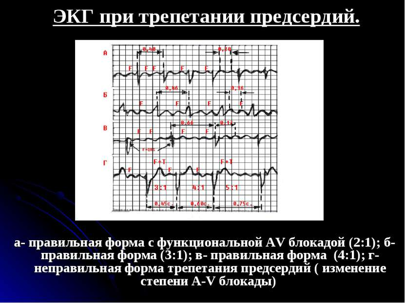 ЭКГ при трепетании предсердий. а- правильная форма с функциональной АV блокад...