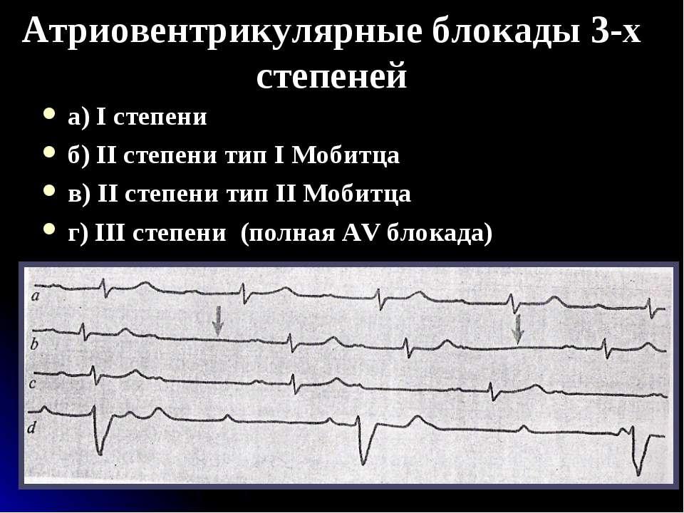Атриовентрикулярные блокады 3-х степеней а) I степени б) II степени тип I Моб...