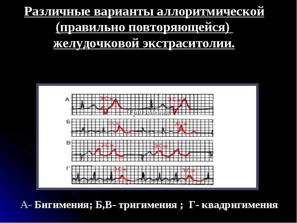 Различные варианты аллоритмической (правильно повторяющейся) желудочковой экс...