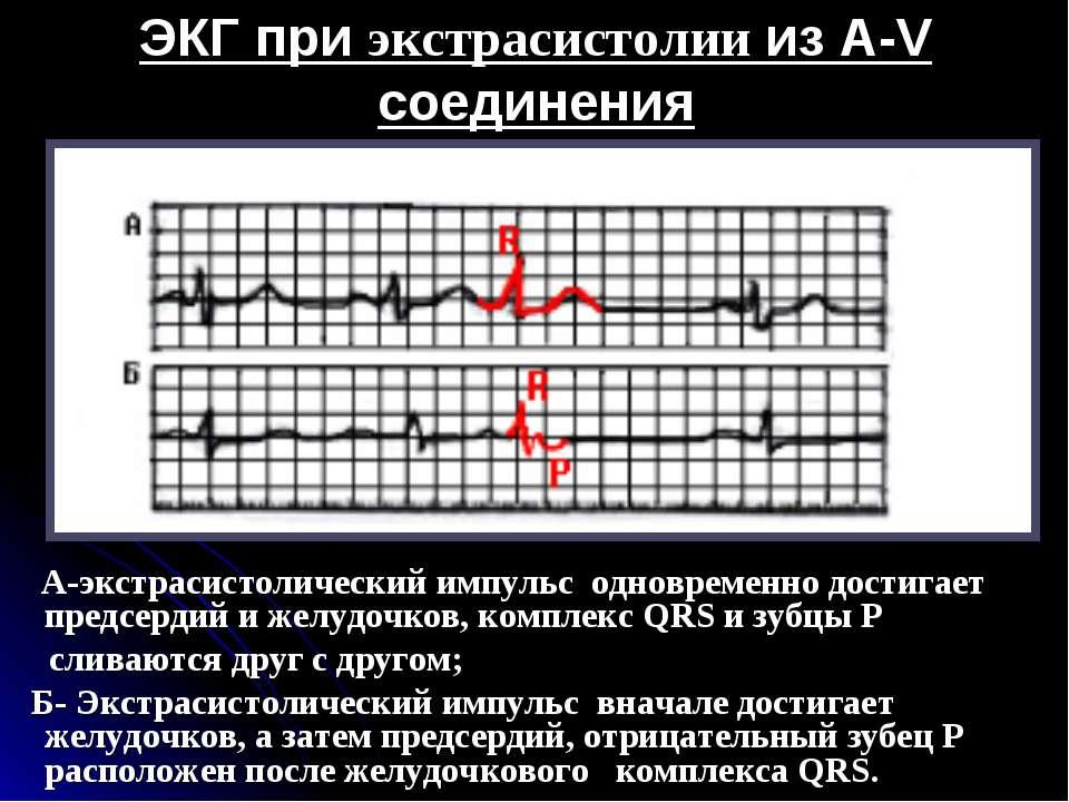 ЭКГ при экстрасистолии из A-V соединения А-экстрасистолический импульс одновр...