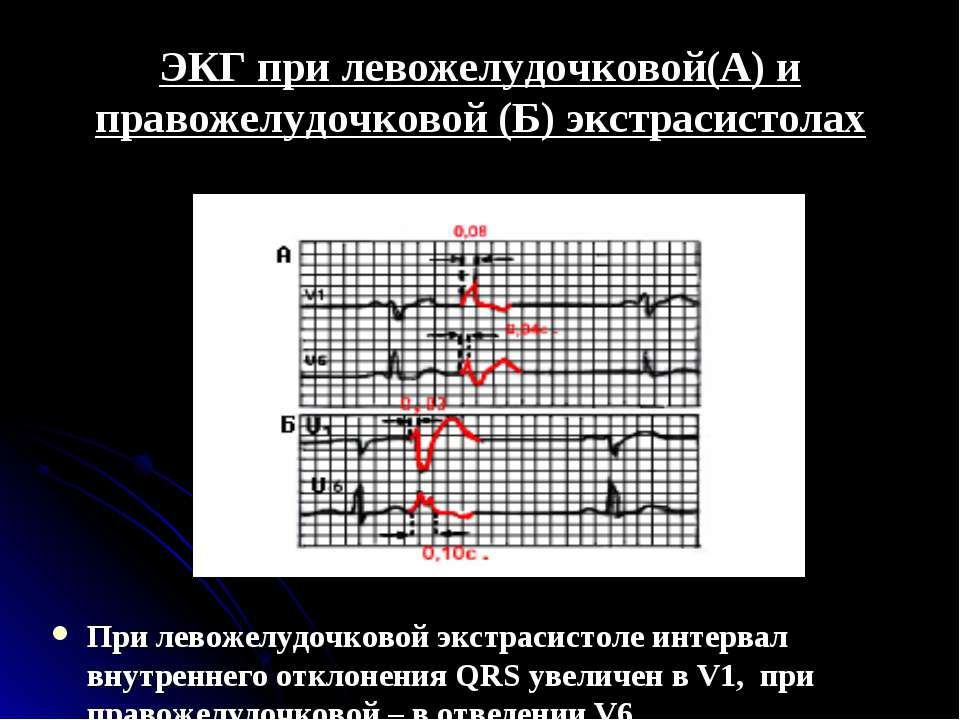 ЭКГ при левожелудочковой(А) и правожелудочковой (Б) экстрасистолах При левоже...