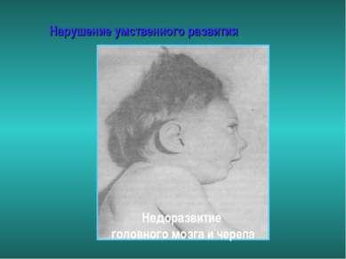 Нарушение умственного развития Недоразвитие головного мозга и черепа