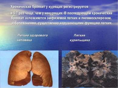 Хронический бронхит у курящих регистрируется в 5-7 раз чаще, чем у некурящих....