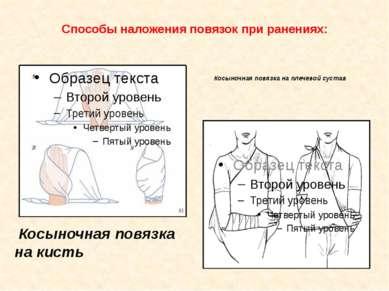 Способы наложения повязок при ранениях: Косыночная повязка на кисть Косыночна...