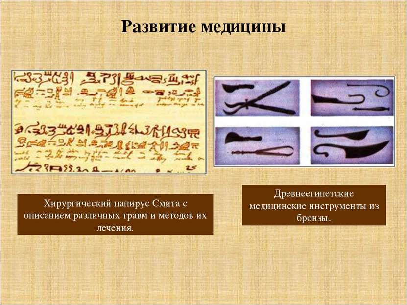 Древнеегипетские медицинские инструменты из бронзы. Развитие медицины Хирурги...