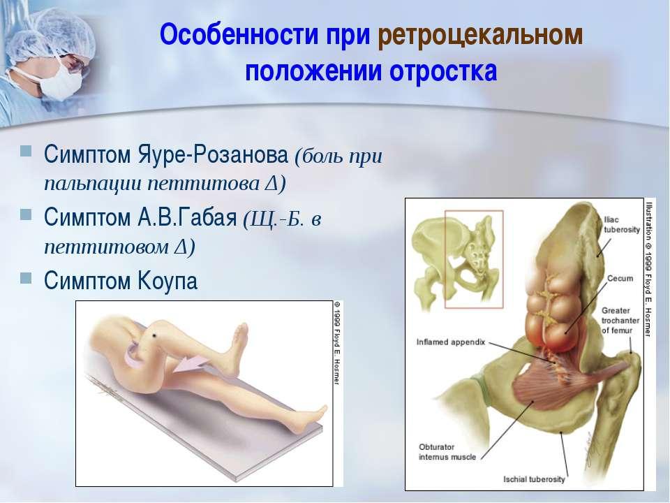Особенности при ретроцекальном положении отростка Симптом Яуре-Розанова (боль...