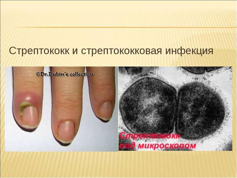 Стрептококк и стрептококковая инфекция