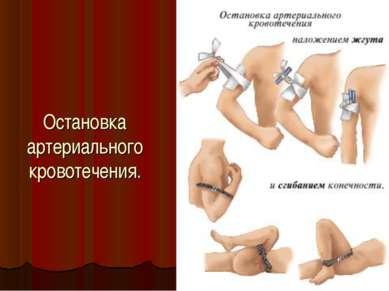 Остановка артериального кровотечения.