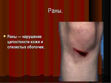Раны. Раны — нарушение целостности кожи и слизистых оболочек.