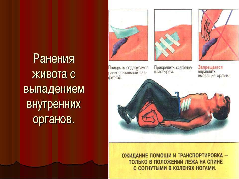 Ранения живота с выпадением внутренних органов.