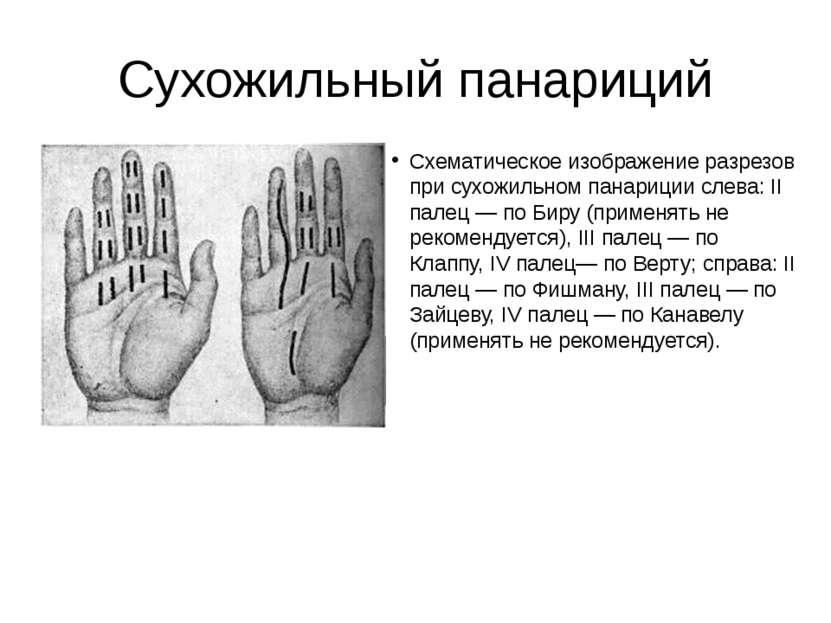 Сухожильный панариций Схематическое изображение разрезов при сухожильном пана...