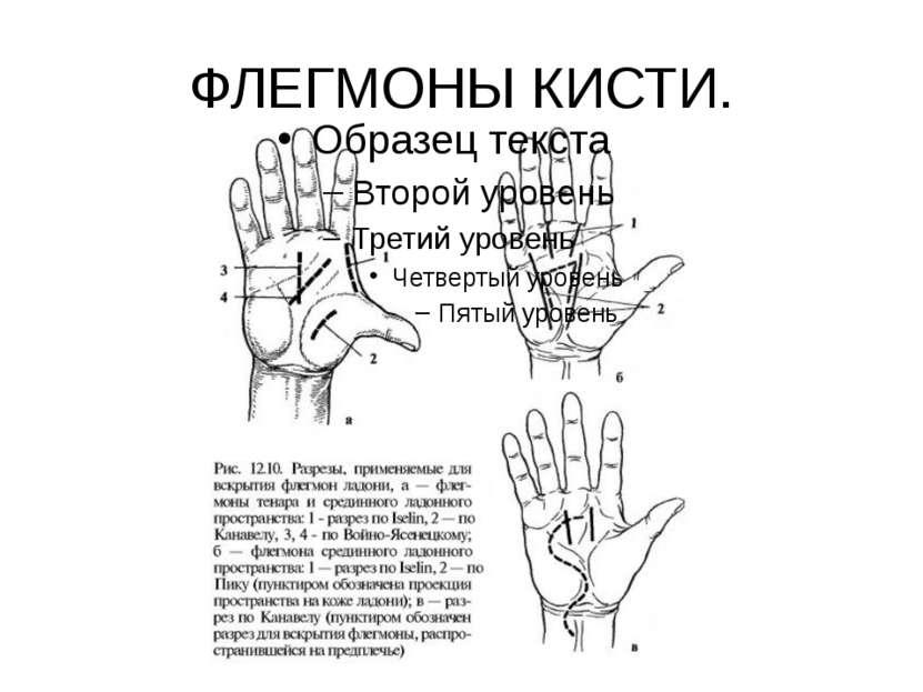 ФЛЕГМОНЫ КИСТИ.