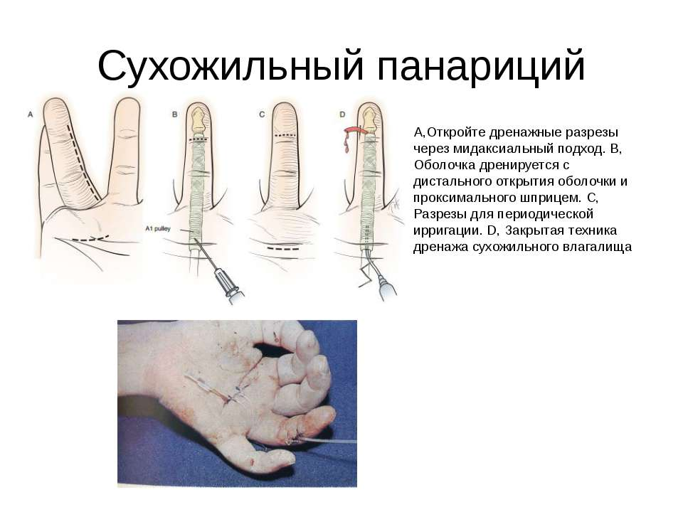 Сухожильный панариций A,Откройте дренажные разрезы через мидаксиальный подход...