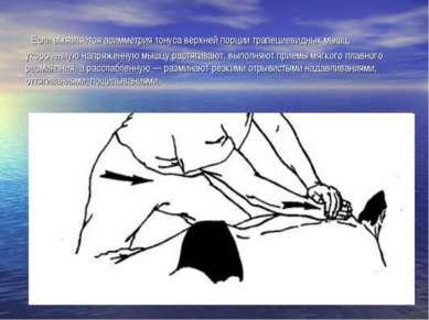 Если выявляется асимметрия тонуса верхней порции трапециевидных мышц, укороче...
