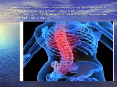 Сколиозом называется искривление позвоночника вправо или влево (во фронтально...