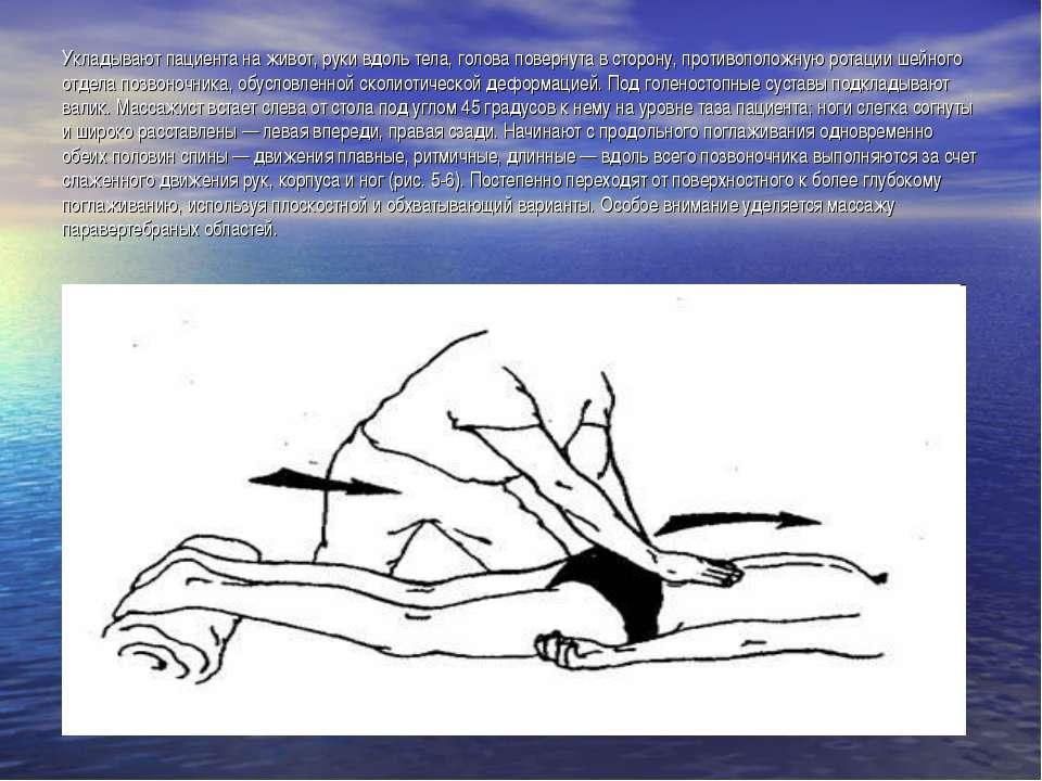 Укладывают пациента на живот, руки вдоль тела, голова повернута в сторону, пр...