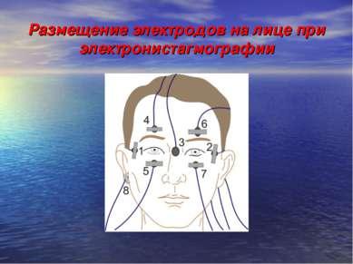 Размещение электродов на лице при электронистагмографии