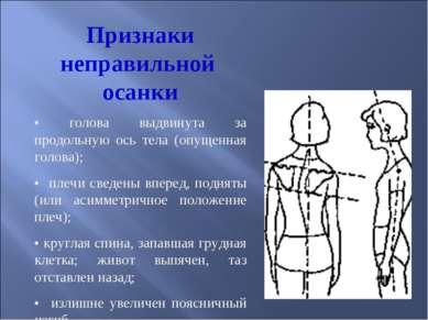 Признаки неправильной осанки • голова выдвинута за продольную ось тела (опуще...