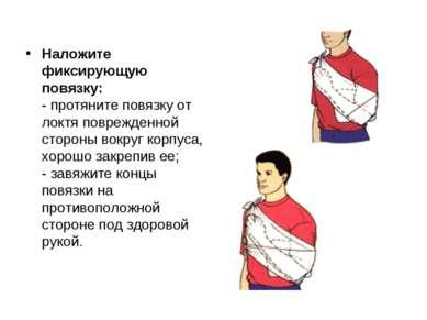 Наложите фиксирующую повязку: - протяните повязку от локтя поврежденной сторо...