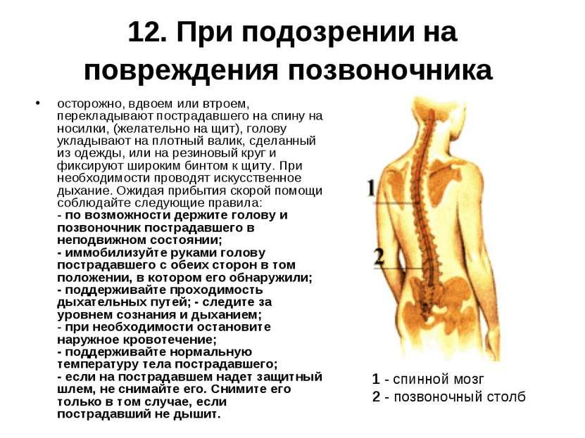 12. При подозрении на повреждения позвоночника осторожно, вдвоем или втроем, ...
