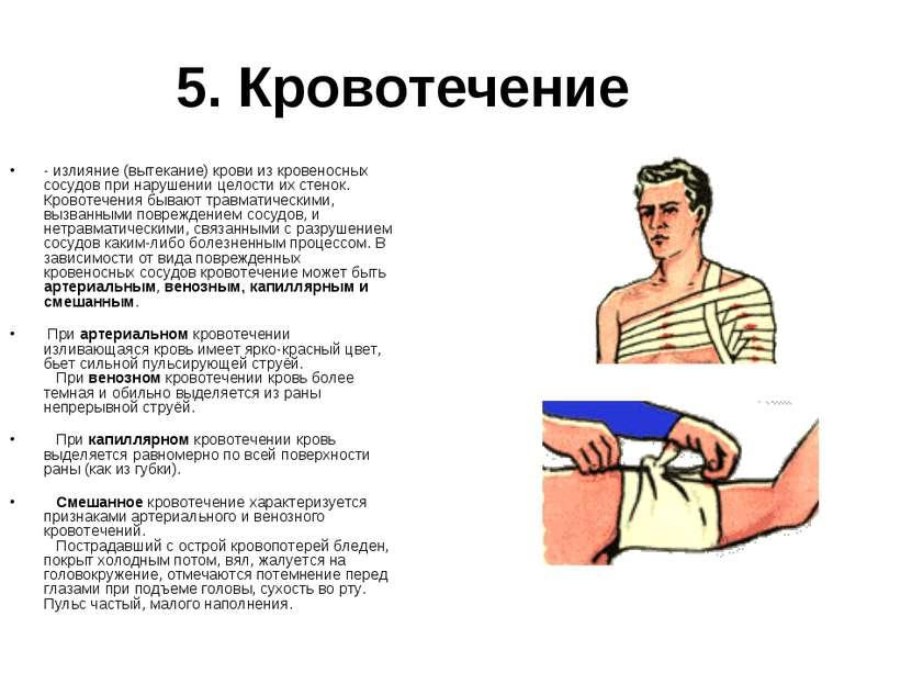 5. Кровотечение - излияние (вытекание) крови из кровеносных сосудов при наруш...