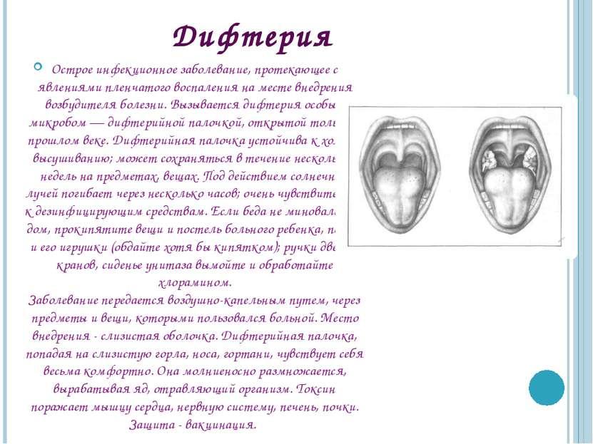 Дифтерия Острое инфекционное заболевание, протекающее с явлениями пленчатого ...