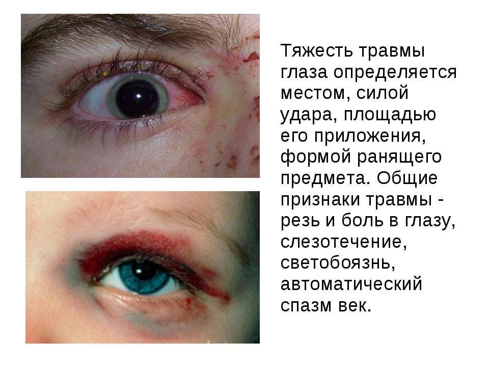 Тяжесть травмы глаза определяется местом, силой удара, площадью его приложени...