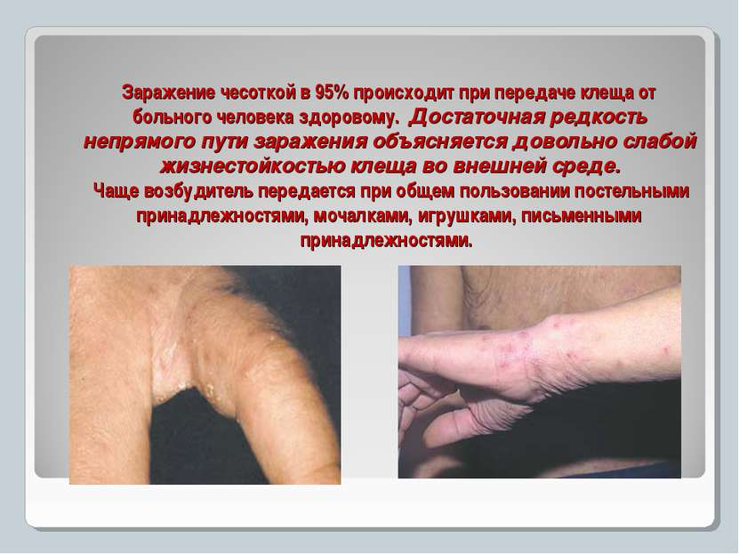 Заражение чесоткой в 95% происходит при передаче клеща от больного человека з...