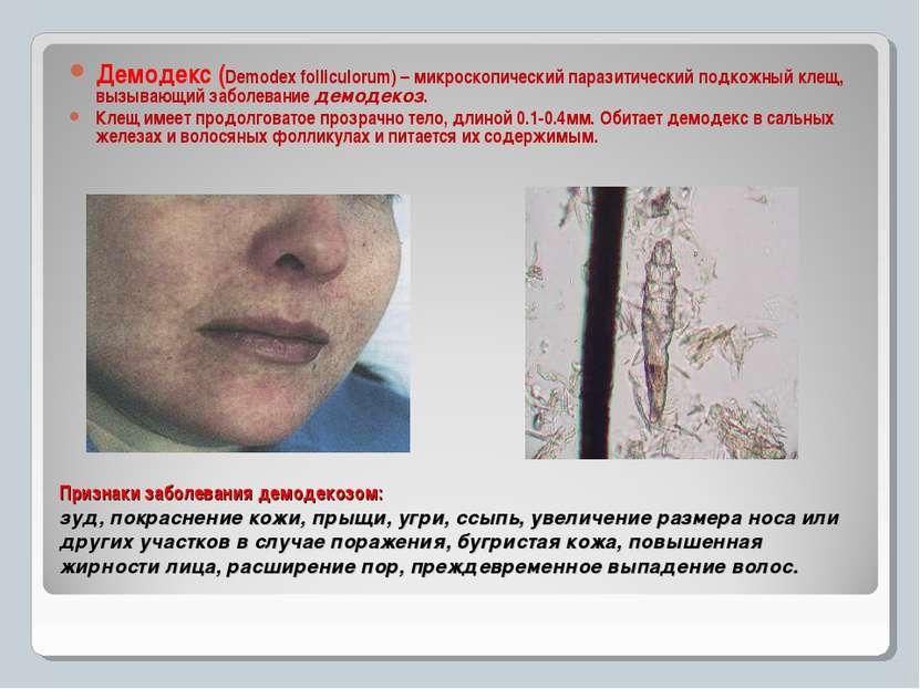 Признаки заболевания демодекозом: зуд, покраснение кожи, прыщи, угри, ссыпь, ...