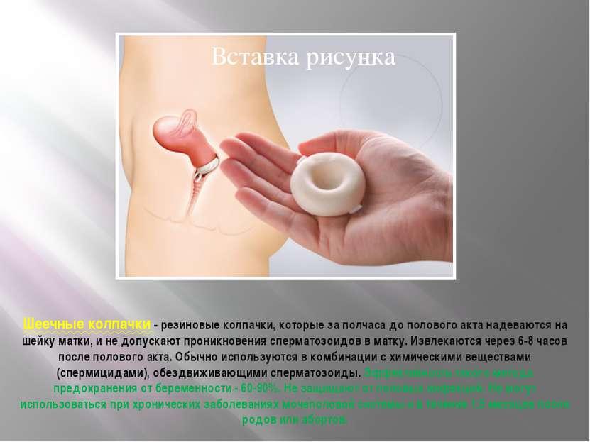 Шеечные колпачки - резиновые колпачки, которые за полчаса до полового акта на...