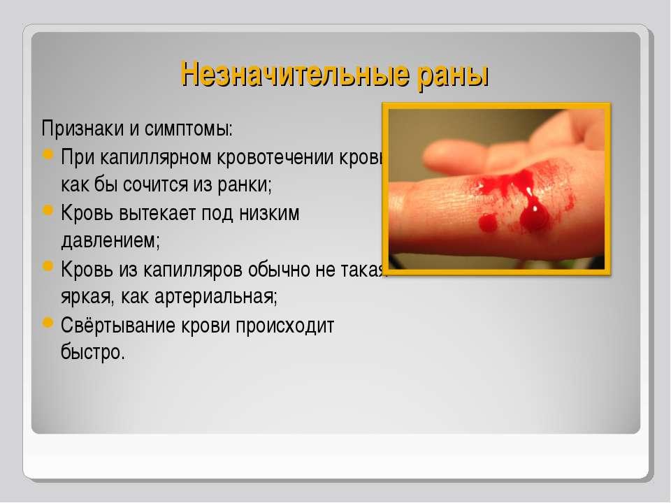 Незначительные раны Признаки и симптомы: При капиллярном кровотечении кровь к...