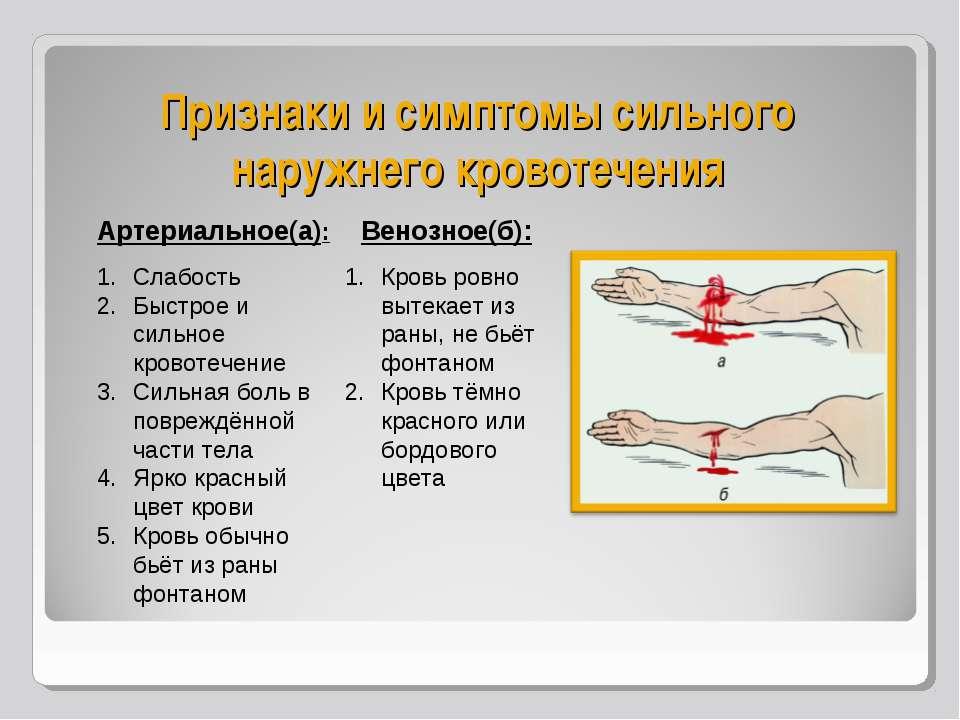 Признаки и симптомы сильного наружнего кровотечения Артериальное(а): Слабость...
