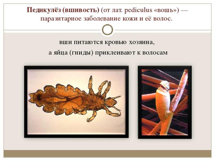 Педикулёз (вшивость) (от лат. pediculus «вошь»)— паразитарное заболевание ко...