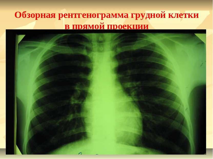 Обзорная рентгенограмма грудной клетки в прямой проекции