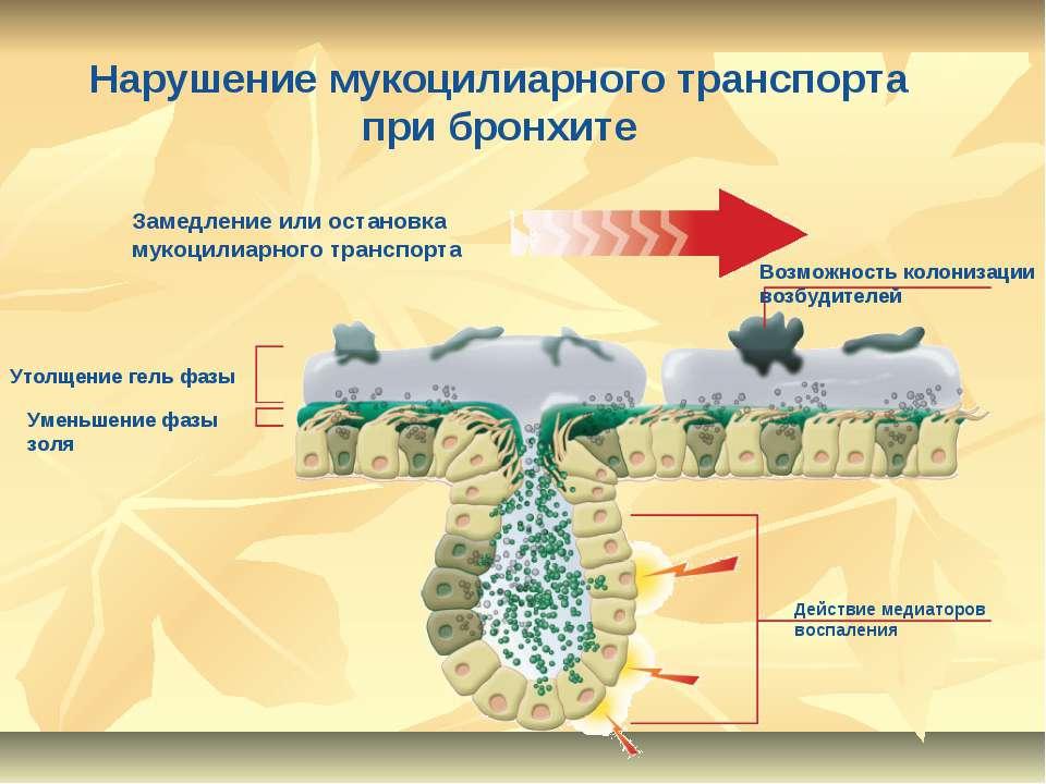 Нарушение мукоцилиарного транспорта при бронхите Утолщение гель фазы Уменьшен...