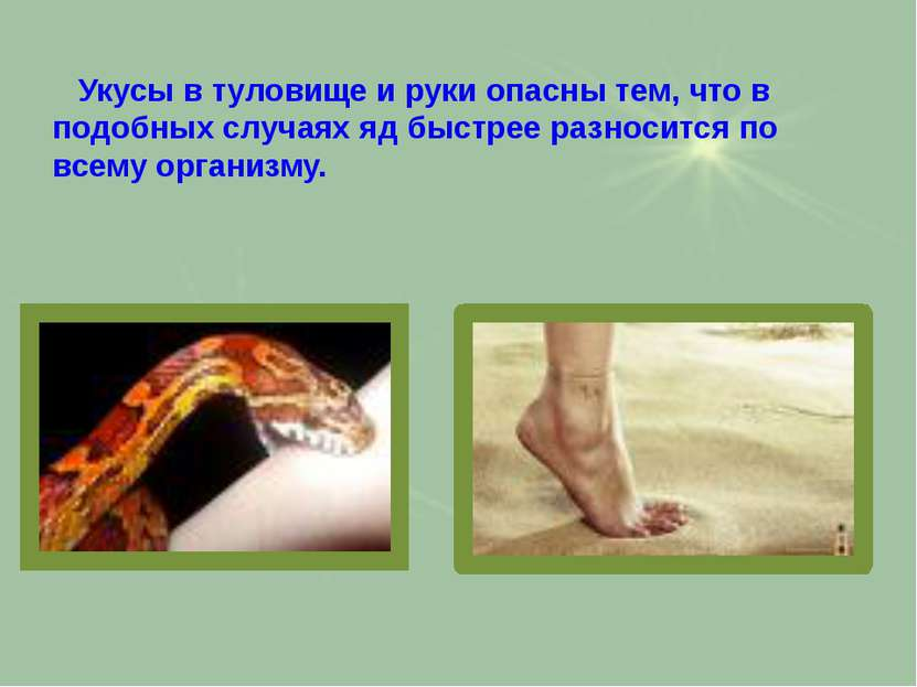 Укусы в туловище и руки опасны тем, что в подобных случаях яд быстрее разноси...