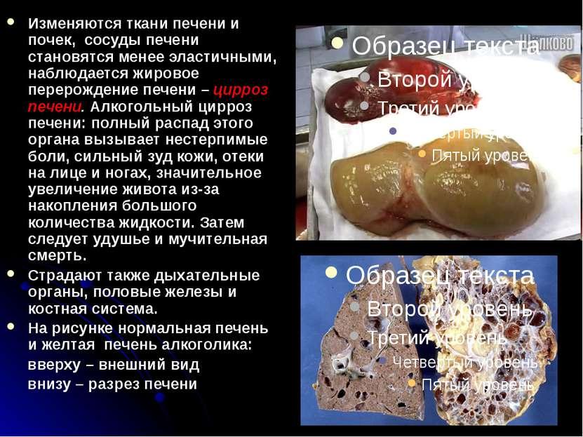 Изменяются ткани печени и почек, сосуды печени становятся менее эластичными, ...