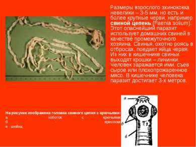 Размеры взрослого эхинококка невелики – 3-5 мм, но есть и более крупные черви...