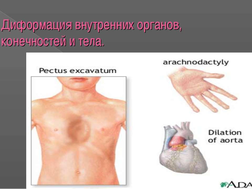 Диформация внутренних органов, конечностей и тела.