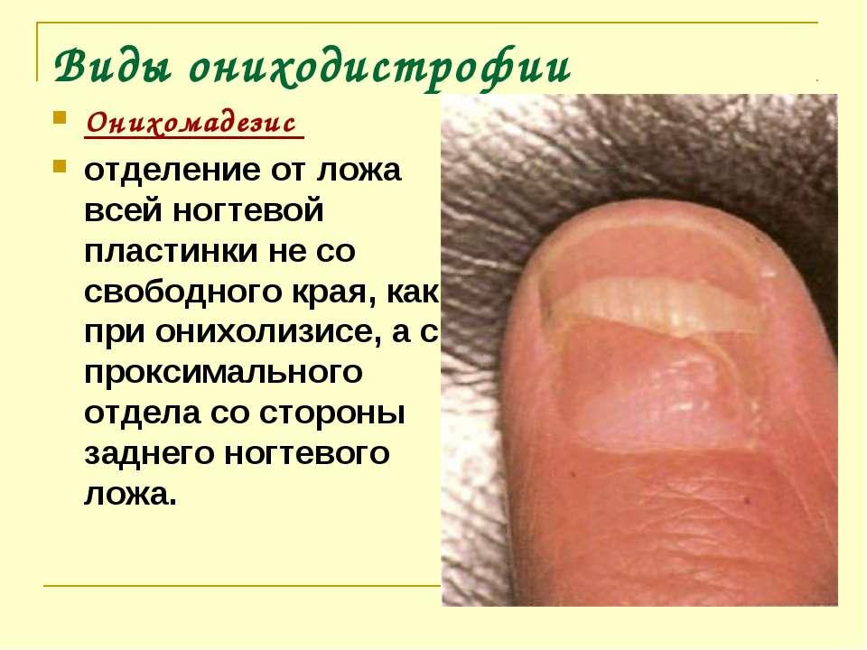 Виды ониходистрофии Онихомадезис отделение от ложа всей ногтевой пластинки не...