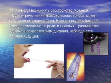 Также могут возникнуть расстройство глотания, гнусавая речь, невнятная, охрип...