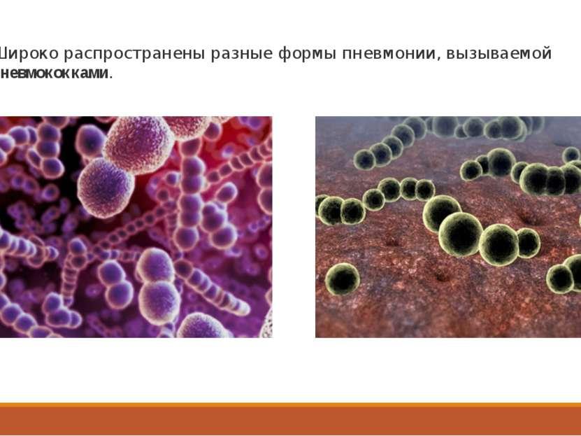 Широко распространены разные формы пневмонии, вызываемой пневмококками.