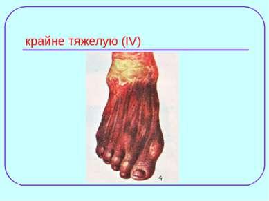 крайне тяжелую (IV)